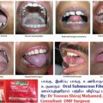 பாக்கு, இனிப்பு பாக்கு உண்போருக்கு உருவாகும் Oral Submucous Fibrosis & வாய்ப்புற்றுநோய்